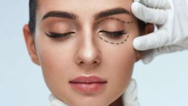 Non-Surgical-Eye-Lift-and-Skin-Tightening