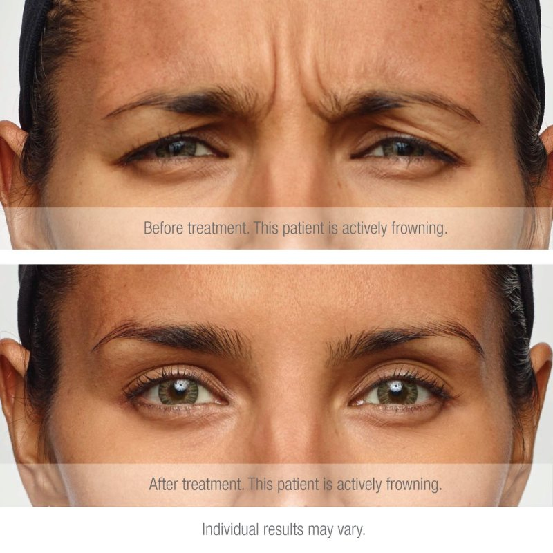 Before-After-Antiwrinkle