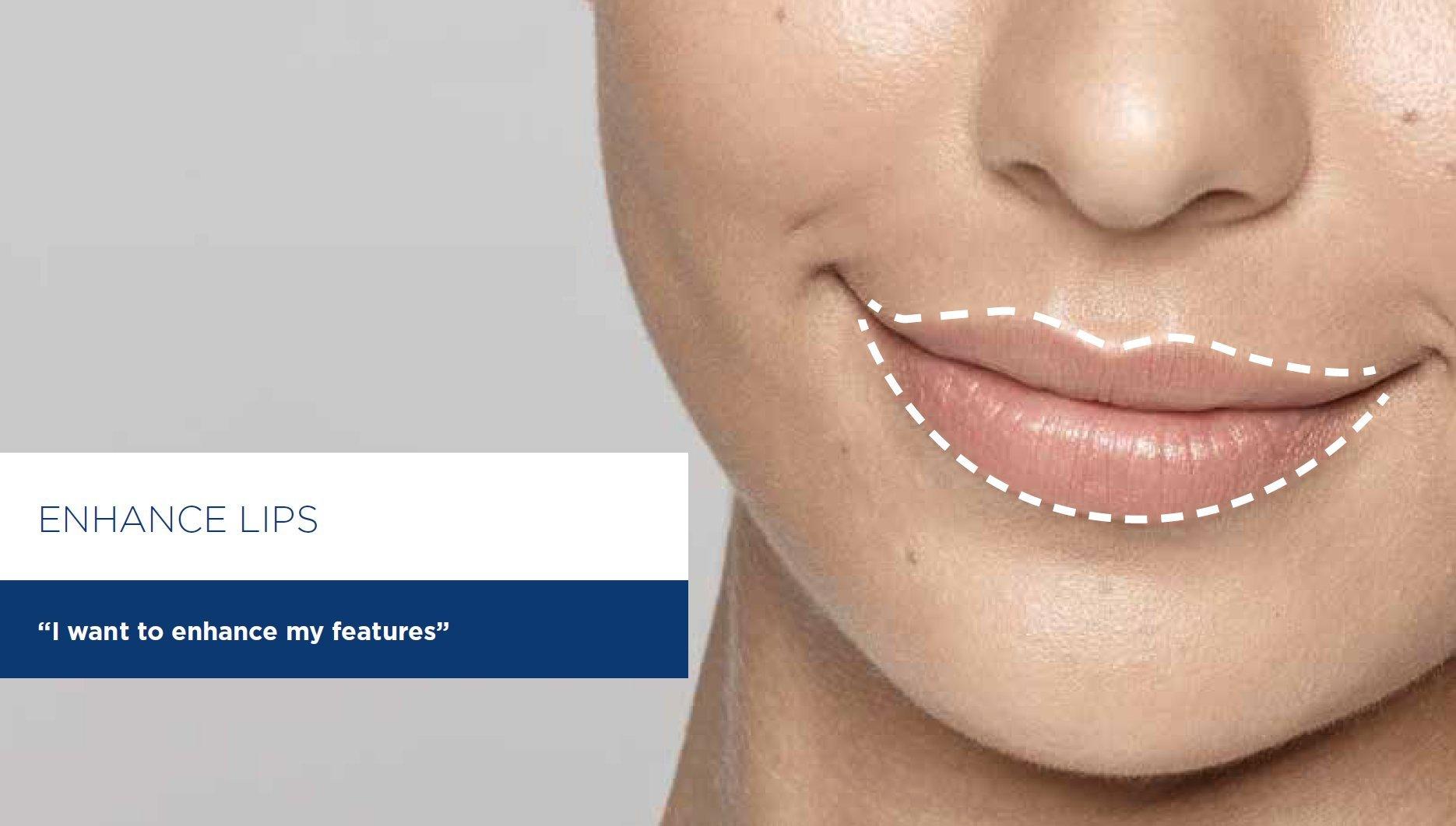 enhance lips