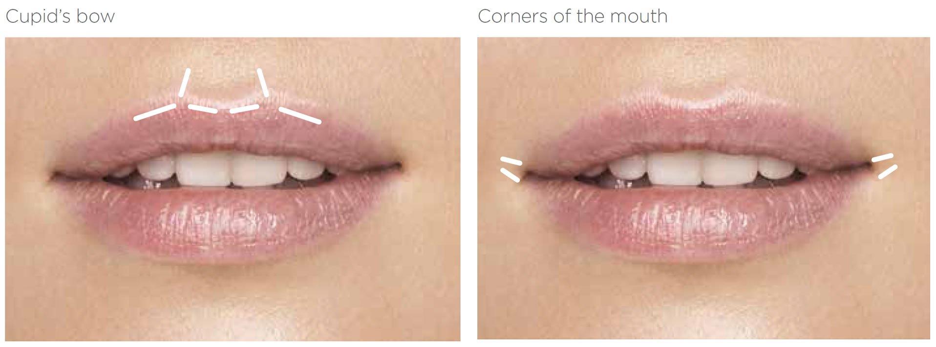 lips - cupids bow