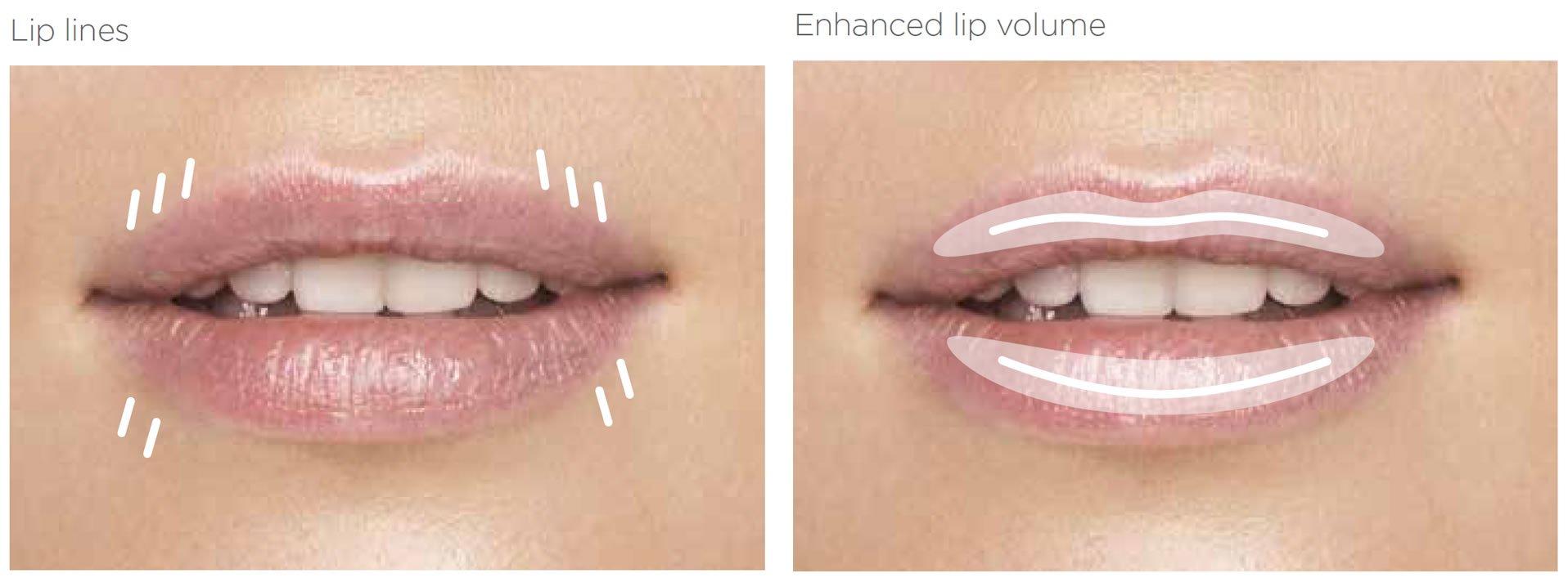 lips - lines